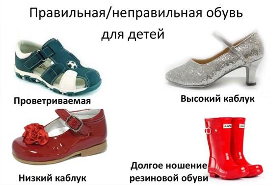 Правила выбора обуви при плоскостопии
