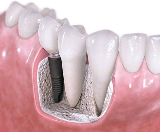 Виды и качество зубных имплантов